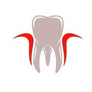Tandvlees problemen